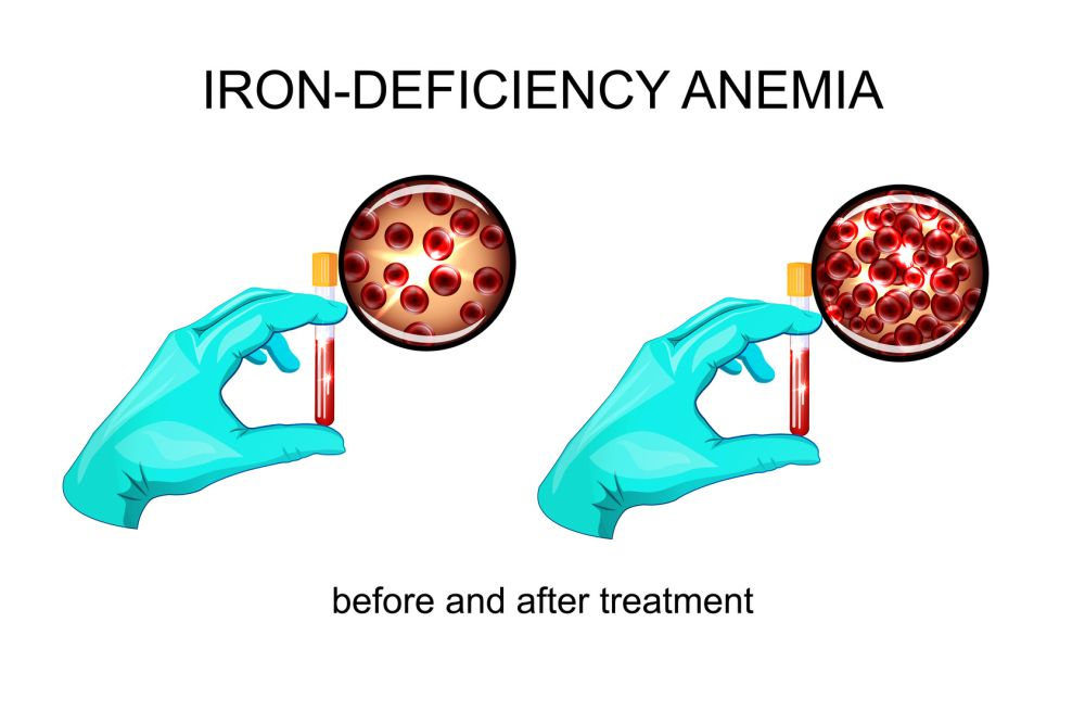 an analysis of anaemia iron deficiency more common in women Understand iron deficiency in men, women (including in pregnancy) & children   iron deficiency is one of the most common causes of anemia  after taking the  person's medical history and performing a physical examination, a doctor will.